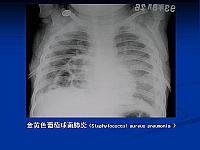 儿科学_李廷玉_小儿肺炎胸片3